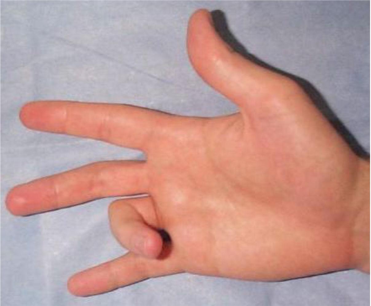 Ушиб пальца на ноге: что делать в домашних условиях и как 68